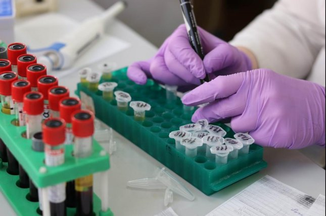 At Home Colon Cancer Tests Reminders Boost Screening By Nearly 40 Study Finds Upi Com