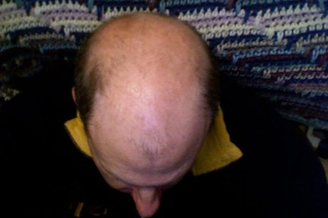 There are many types of alopecia. There's currently no confirmed cure for alopecia universalis. (CC/David Lewis)