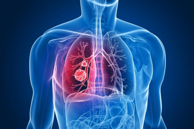 Lung cancer is already difficult to treat, but it is made more difficult by the fact that many cases are caught at an advanced stage. Researchers in England found that with increased screening of high risk people, more cases can be found earlier and increase the chance of five-year survival with the disease. Photo by Sebastian Kaulitzki/Shutterstock