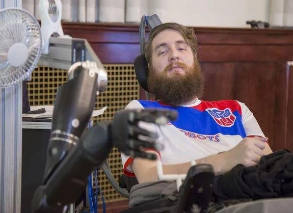 Man's robotic arm works faster with high-tech sense of touch