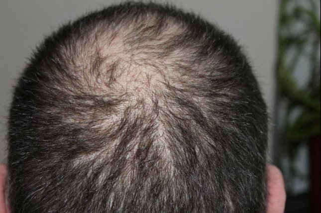 Finasteride For Hair Loss May Increase Risk For Depression Suicidal Thoughts Study Finds Upi Com