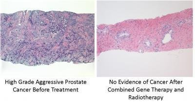 Before and after pictures of a patient's prostate show the effectiveness of combined gene therapy and radiotherapy. Photo by Houston Methodist