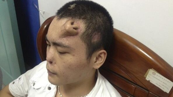 forehead nose procedure generates new nose for man in china upi com