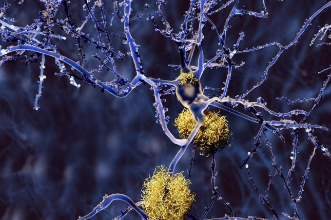 The drug candesartan, sold as Atacand, prevented inflammation and other processes that contribute to neuronal death, including changes to amyloid metabolism, which affects the buildup of amyloid plaques typical of Alzheimer's disease patients' brains. Photo by Juan Gaertner/Shutterstock