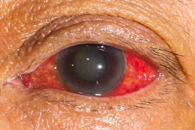 By increasing blood flow to the eyes using increased nitrate intake researchers said the risk for primary open-angle glaucoma goes down significantly. Photo by ARZTSAMUI/Shutterstock
