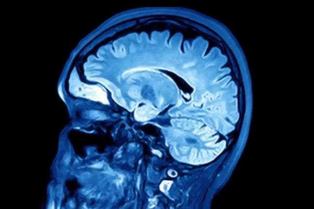 Researchers believe viral species may play a role according to an Alzheimer's disease in a study of brain samples from people with and without the disease. Image courtesy of Mount Sinai School of Medicine