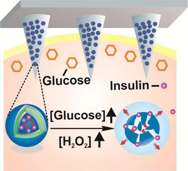 Tiny, painless microneedles on a smart patch can deliver insulin automatically in response to rising glucose levels are being tested on mice. Photo courtesy American Chemical Society