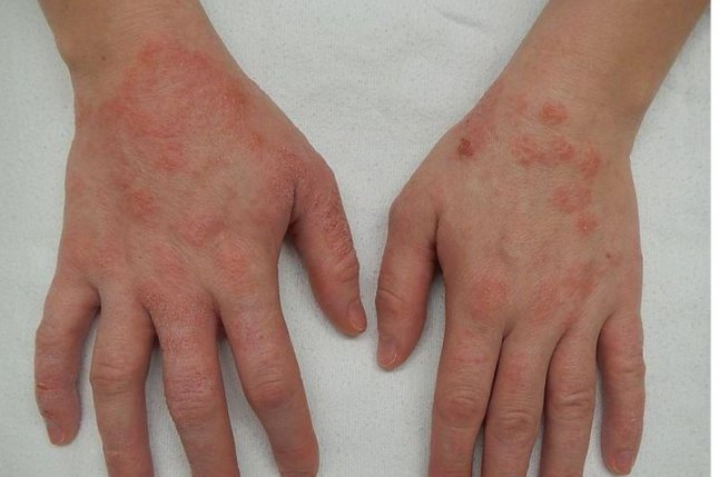 New Study Suggests Treatment >> Study Suggests New Approach To Treating Eczema Upi Com