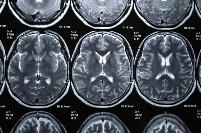 Researchers have found they may be able to predict OCD patients' response to treatment using a brain scan. Photo: toysf400/Shutterstock