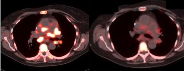 Researchers are calling for an expansion of molecular imaging in precision cancer care. Left, image of pre-therapy PET scan, right, image after three days of treatment. Penn Medicine