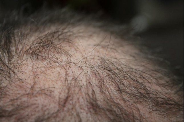 High-dose radiation applied to the scalp in cancer treatment is associated with increased hair loss, a new study has found. Photo by kalhh/Pixabay