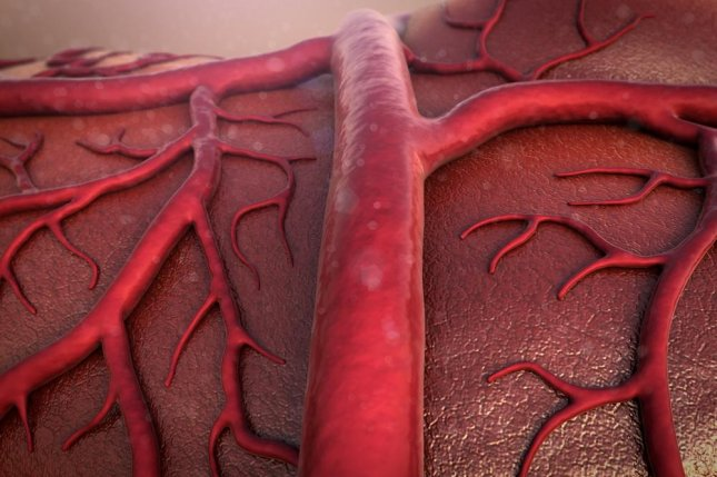 Peripheral arterial disease diminishes blood flow to the lower extremities, and a new method of developing new blood vessels may prove to be effective against it. Photo by UGREEN 3S/Shutterstock
