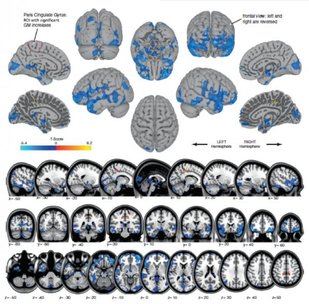 The brain changes were most pronounced in astronauts who spent more time in space. Photo by University of Michigan