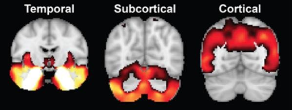Researchers say different patterns of brain atrophy are associated with the variations in cognitive declines in Alzheimer's disease. Image by Xiuming Zhang, National University of Singapore