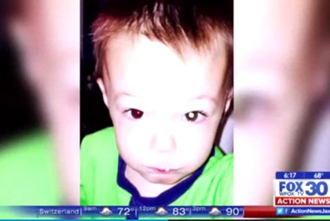 This photo of Avery Fitzgerald's eyes led his mother to take him to a specialist, who found mutliple tumors on the boy's eye. WAWS-TV screenshot