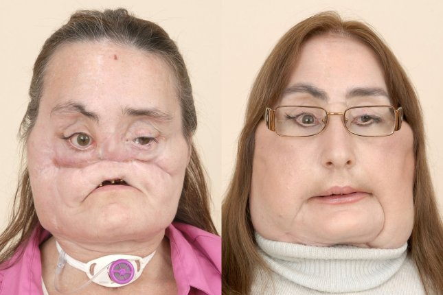 Connie Culp, shown here in a combination photo released by the Cleveland Clinic in May 2009, died Thursday at the age of 57. She was the first successful face transplant recipient. Photo courtesy of Cleveland Clinic
