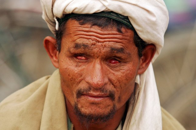 A blind man asks for money in Kabul, Afghanistan on September 17, 2009. UPI/Mohammad Kheirkhah