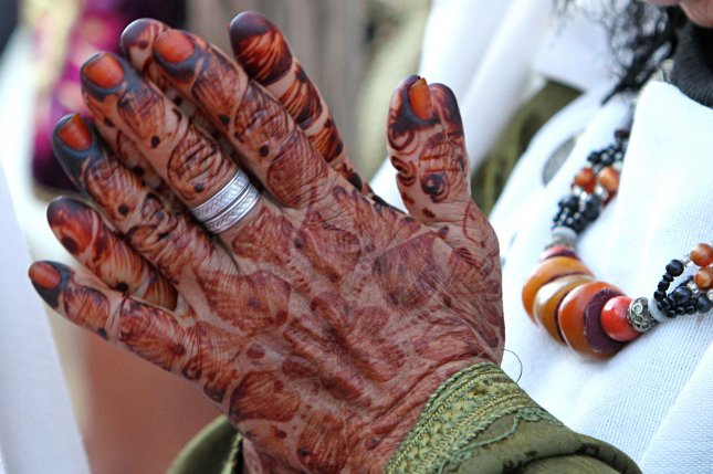 Henna Tattoo Infection: FDA: A Temporary Tattoo Is Not A Safe Alternative To A