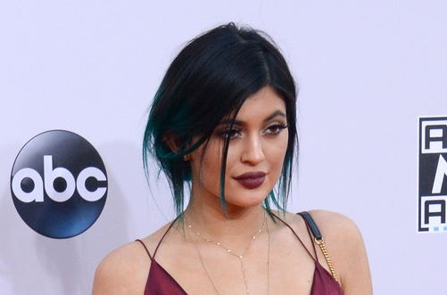 Kylie Jenner admitted to plumping her pout with temporary lip fillers. File photo by Jim Ruymen/UPI