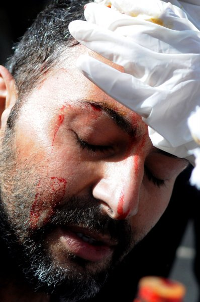 Injured AP news agency photographer Khalil Hamra is seen during clashes between anti-government demonstrators and their pro-government opponents in Tahrir Square, Cairo, Feb. 3, 2011. UPI