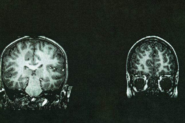 White matter spots on MRI scans of the brain may help diagnose dementia, researchers say. File Photo by Suzanne Tucker/Shutterstock