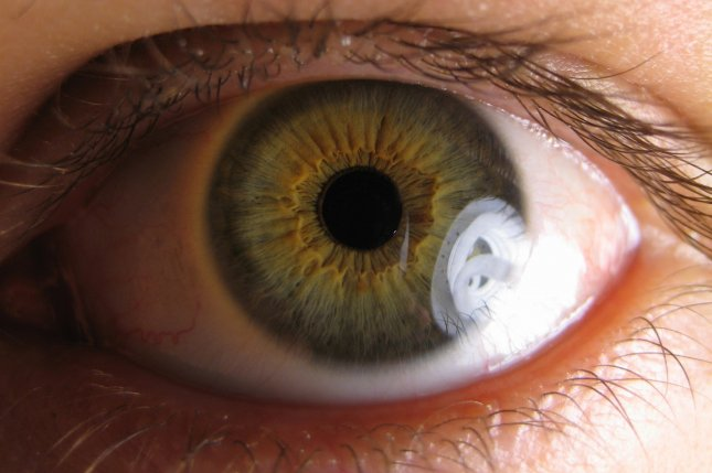 A new form of gene therapy may help protect against vision loss in glaucoma and diabetse, a new study has found. Photo by Ylem/Wikimedia Commons