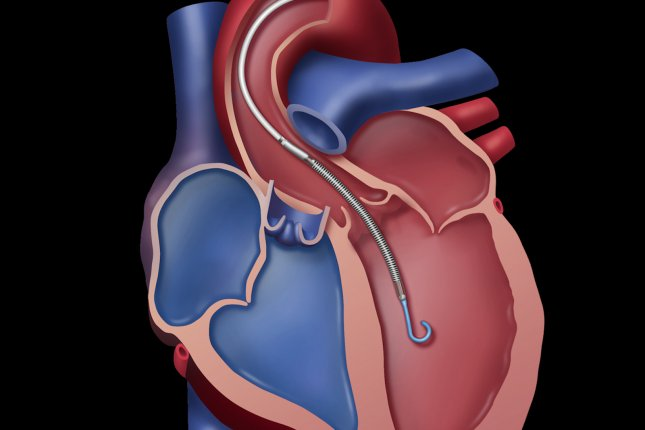 Cancer survivors are at increased risk for heart disease because of its effects on the organ, new CDC research shows. Illustration courtesy Abiomed