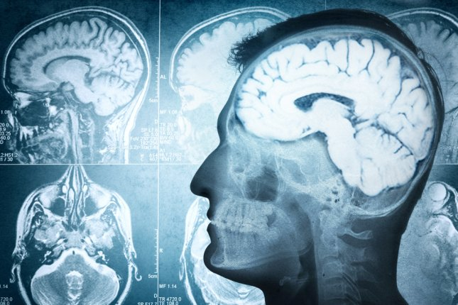 A potential novel therapy targets a cancer known as glioblastoma, which penetrates brain tissue and hides from radiation, chemotherapy and surgical treatments -- allowing it to come back. File Photo by Riff/Shutterstock