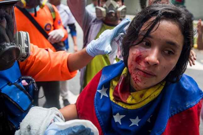 An injured protester receives a medical treatment during a student march, in Caracas, Venezuela on November 21, 2018. Venezuela is set to become the most violent country in Latin America in 2018. File Photo by Miguel Gutierrez/EPA-EFE