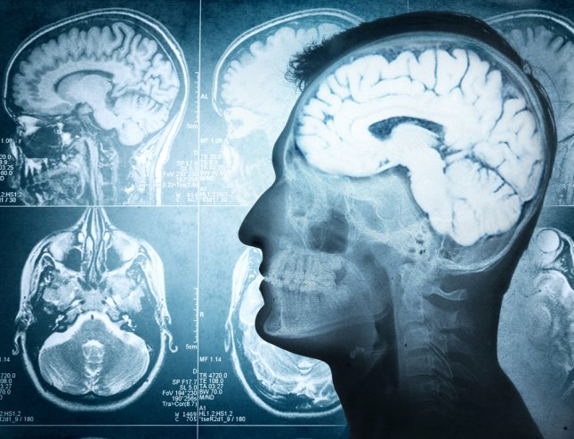 New research suggests some people have healthier brain structures, which helps prevent the development of Alzheimer's disease -- a finding that may help researchers find methods preserving or protecting the brain to prevent the disease. Photo by Riff/Shutterstock