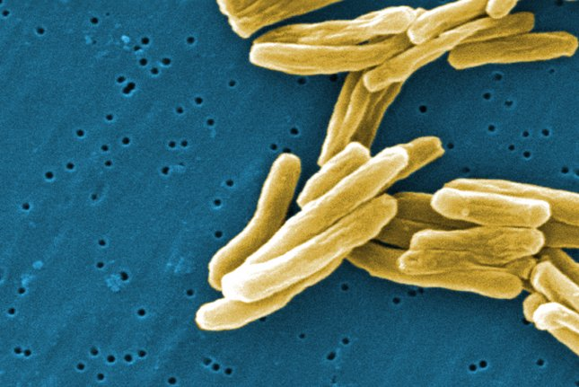 The latest clinical trial results of a new vaccine for deadly TB show promise, researchers report. Photo courtesy of U.S. Centers for Disease Control and Prevention