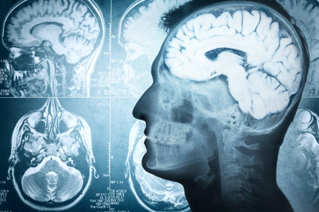 The Massachusetts Institute of Technology announced is it no longer collaborating with a startup that wants to store people's brain memories -- but the process is 100 percent fatal. Photo by Riff/Shutterstock