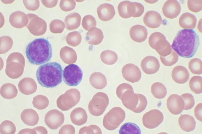 Peripheral blood smear showing chronic lymphocytic leukemia cells. Photo by Mary Ann Thompson/Wikimedia Commons