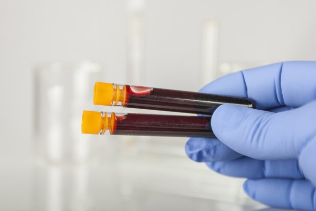 British researchers have licensed a universal blood test for earlier cancer detection with an industrial partner. Photo by Steve Collender/Shutterstock