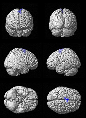 The designation in blue shows where the brain was activated while listening to familiar music during a study of Alzheimer's patients. Photo by MATLAB Handle Graphics/University of Utah