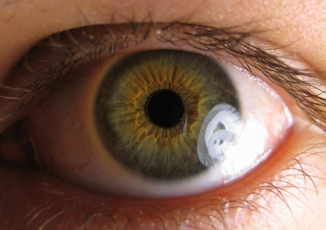 Experiments in pigs and rats suggest that stem cell therapy might help curb at least one form of macular degeneration. Photo by Ylem/Wikimedia Commons