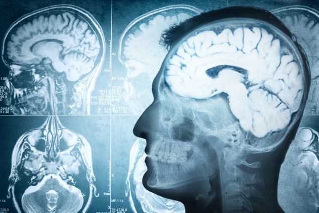 A study found five-year survival rates remain low for patients with glioblastoma brain cancer, one of deadliest tumors. Photo by Riff/Shutterstock