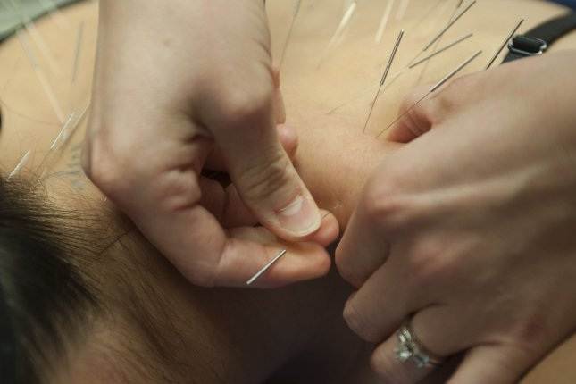 Acupuncture may relieve some forms of cancer pain, analysis finds. Photo by Senior Airman Mikaley Kline/U.S. Air Force