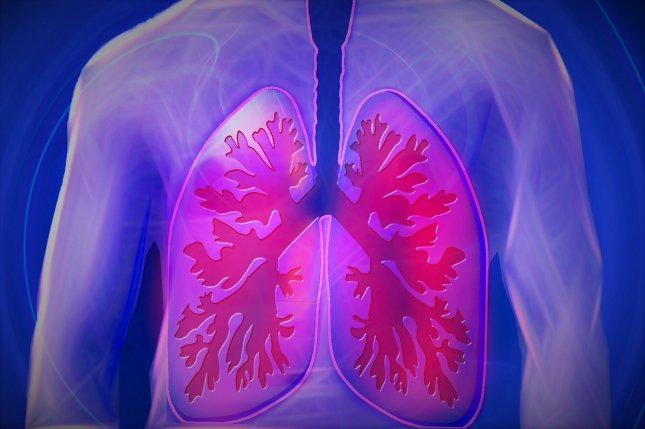 Researchers say they have found a method that may allow for the detection of circulating tumor cells from lung cancer, helping doctors catch the deadly disease far earlier. Photo by kalhh/Pixabay