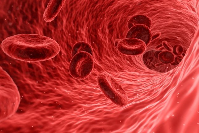 An analysis of dozens of studies confirmed the increased risk for blood clots in severe COVID-19 patients, researchers report. Photo by qimono/pixabay