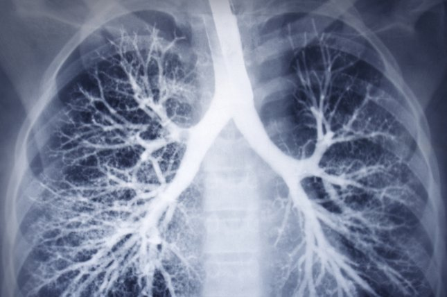 About 77 percent of patients who received CT scans for lung cancer were diagnosed with cardiovascular disease, emphysema or osteoporosis, according to a recent study. File Photo by Guzel Studio/Shutterstock