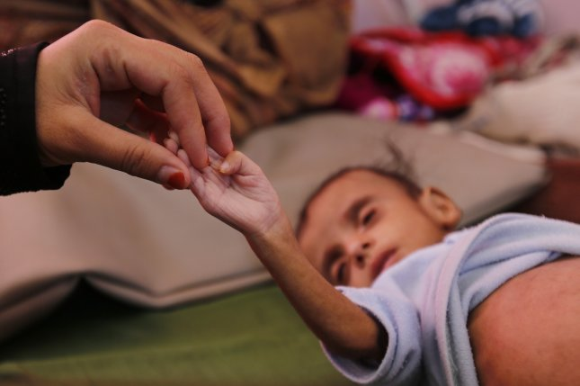 A woman holds the hand of her malnourished child as he receives medical attention in Sanaa, Yemen, on November 16, 2018. File Photo by Yahya Arhab/EPA-EFE