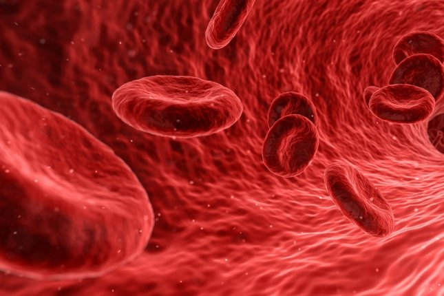 A new drug targeting a blood protein may lower the risk for blood dangerous clots, a study has found. Photo by Qimono/Pixabay
