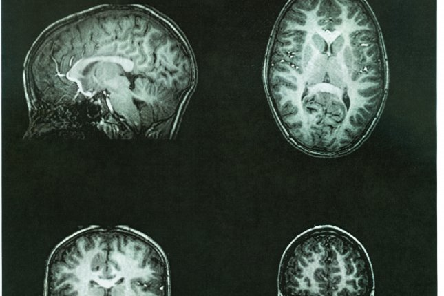 Researchers say that damage to the brain from high blood pressure during middle age may increase risk for dementia, including Alzheimer's disease. File Photo by Suzanne Tucker/Shutterstock