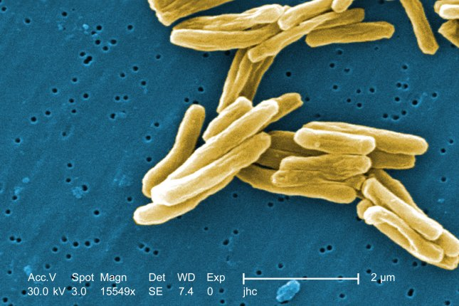 Scientists have discovered a way to accelerate immune response to tuberculosis in mice that could lead to improved vaccines in humans. Image courtesy the U.S. Centers for Disease Control and Prevention