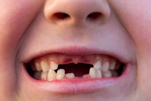 Survey: Tooth Fairy paying less for second year in row