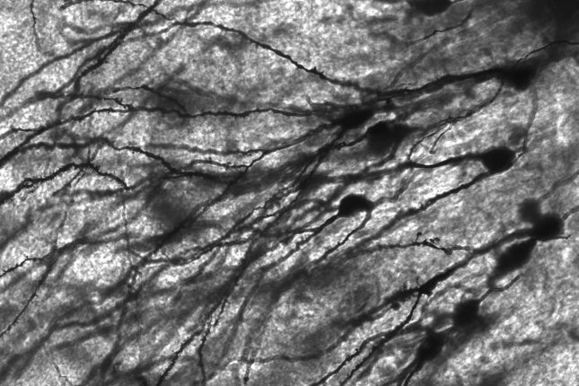 Scientists have developed a new device that controls groups of neurons using precisely controlled light emission. Photo by MethoxyRoxy/Wikimedia Commons