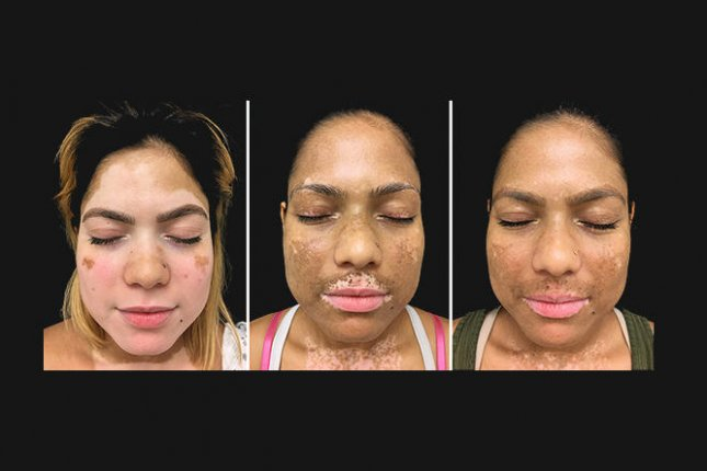 Left to right: Dr. King's vitiligo patient at the beginning of treatment, and at three and six months later. Photo courtesy of Yale School of Medicine