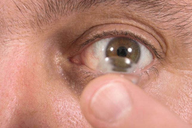 MiSight contact lenses are indicated to correct and slow progression of myopia in children with healthy eyes, the FDA noted. File photo by Ken Hurst/Shutterstock