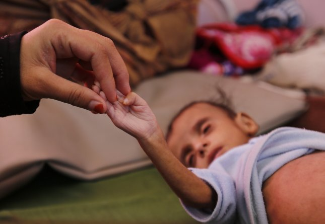 A Yemeni woman holds the hand of her child at a malnutrition treatment center in Yemen, which is the nation with the largest population of people facing acute food insecurity, the 2019 Global Report on Food Crises said. Photo by Yahya Arhab/EPA-EFE